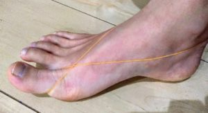 足に輪ゴムをかけた写真